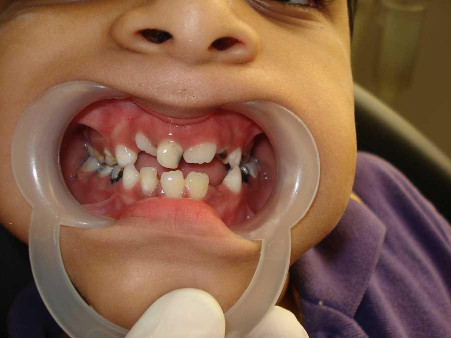 How To Prevent Dental Cavities In Children?