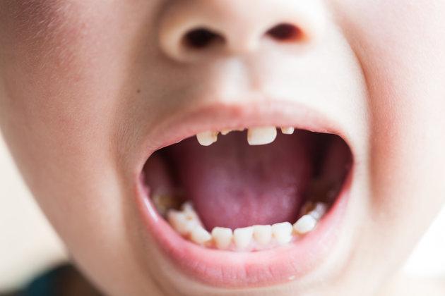 Dental Cavities In Baby Teeth